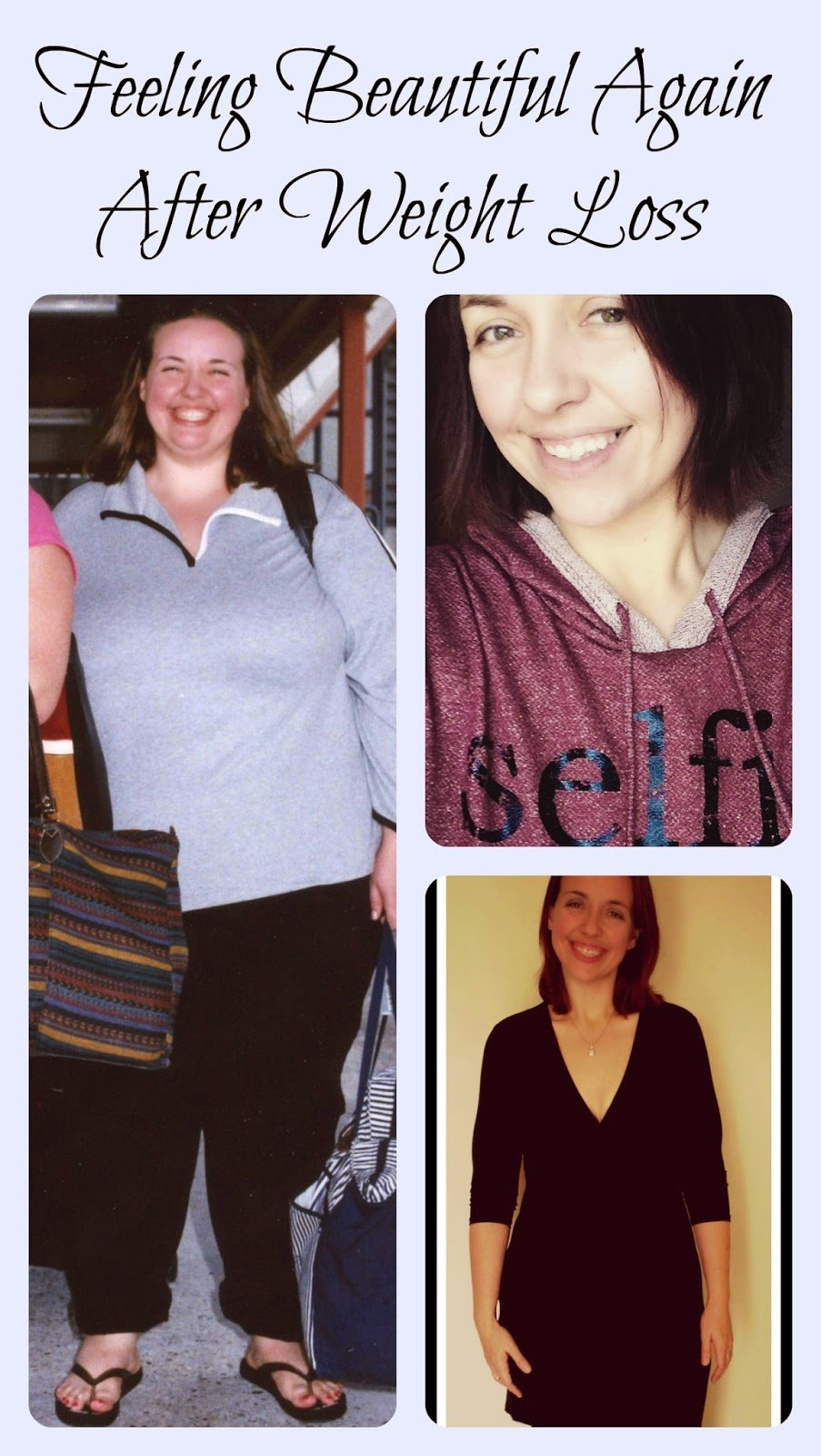 How To Feel Beautiful Again Life After An Extreme Weight Loss